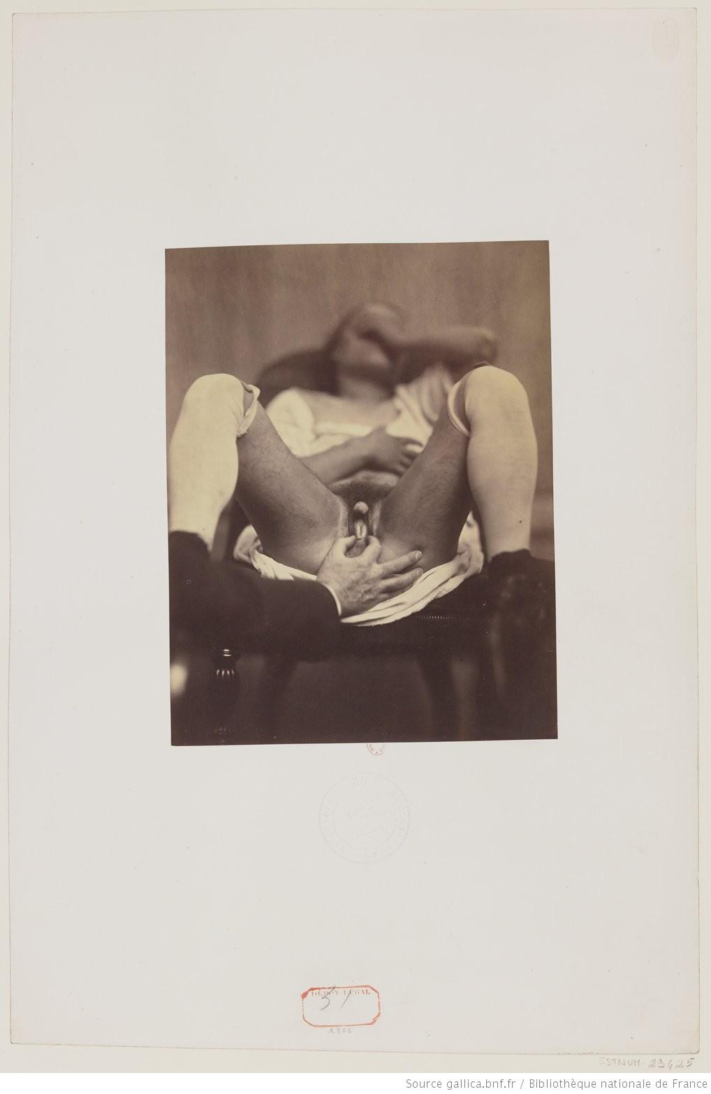 Hermaphrodite [Hermaphrodite] : [lot de photographies] / Nadar