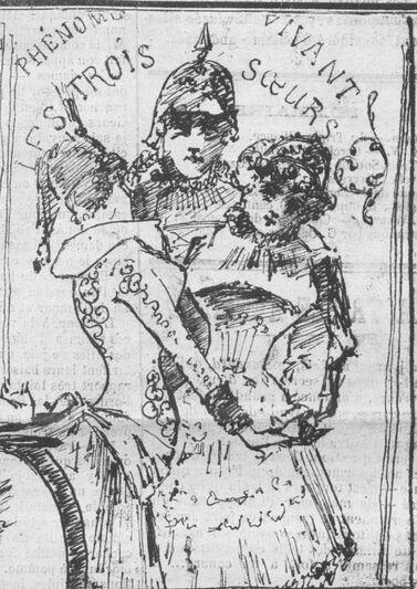 Phénomène vivant : les trois sœurs [Allemagne, Autriche, Russie]. La triple alliance ou le Canard à 3 becs. Image publiée à Toulouse le 9 mars 1884 dans le journal : La Bombe